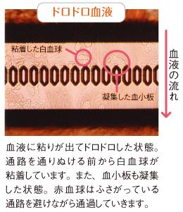 画像 500×579